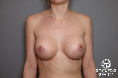 Breast Augmentation: Patient 2 - After Image