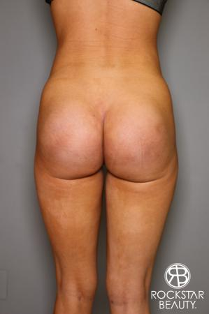 Butt Augmentation: Patient 3 - After Image 1