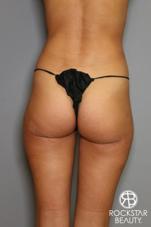 Liposuction: Patient 15 - After Image 1