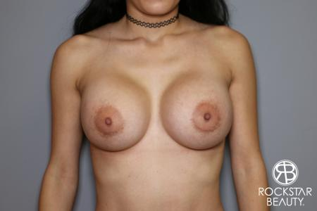 Breast Implant Exchange: Patient 5 - After Image 1