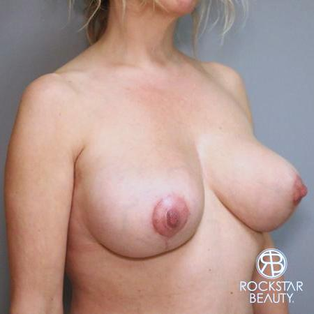 Mastopexy: Patient 1 - After Image 2