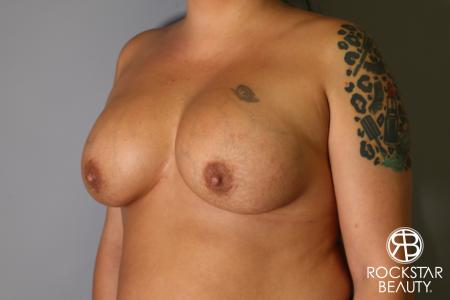 Breast Implant Exchange: Patient 1 - Before Image 2