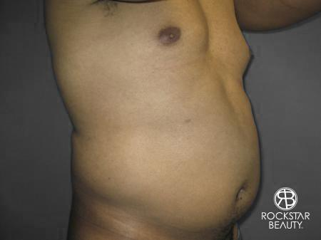 Liposuction: Patient 10 - Before Image 2