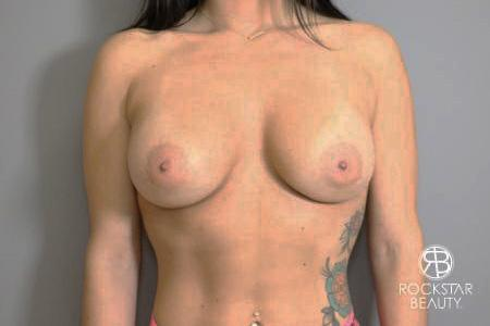 Breast Implant Exchange: Patient 4 - Before Image 1