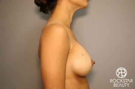 Breast Augmentation: Patient 3 - After Image 3