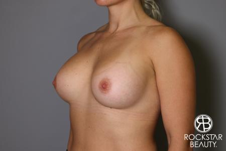 Breast Implant Exchange: Patient 9 - Before Image 4