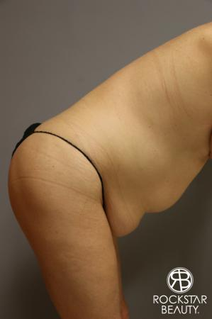 Tummy Tuck: Patient 1 - Before and After Image 4