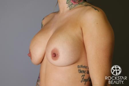 Breast Implant Exchange: Patient 10 - Before Image 3