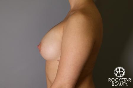 Breast Augmentation: Patient 16 - After Image 4