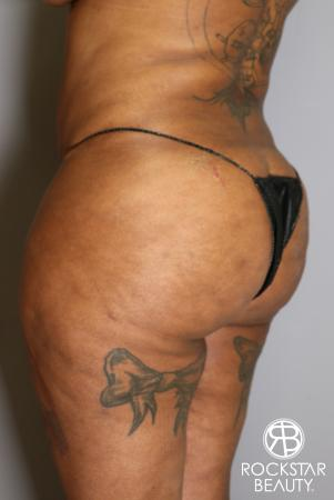 Brazilian Butt Lift: Patient 15 - Before Image 3