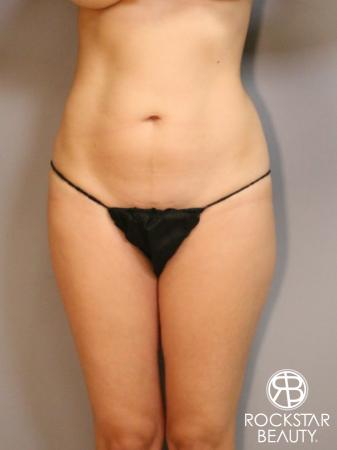 Liposuction: Patient 5 - Before Image 1