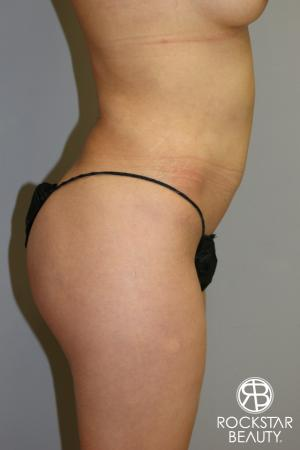 Liposuction: Patient 14 - Before and After Image 5