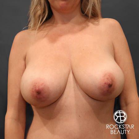 Mastopexy: Patient 1 - Before Image