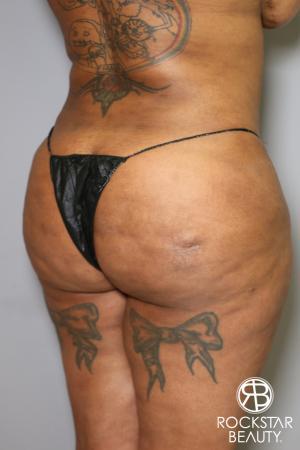 Brazilian Butt Lift: Patient 15 - Before Image 2