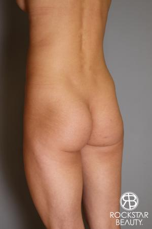 Butt Augmentation: Patient 3 - Before and After Image 5