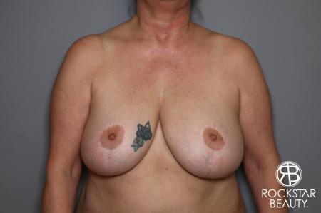 Mastopexy: Patient 2 - Before Image