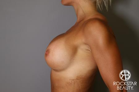 Breast Implant Exchange: Patient 9 - After Image 5