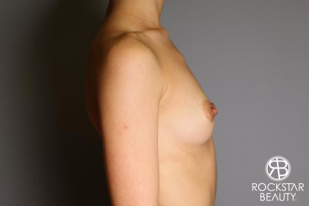Breast Augmentation: Patient 17 - Before and After Image 5