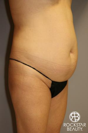 Tummy Tuck: Patient 1 - Before Image 2