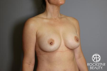 Breast Implant Exchange: Patient 6 - Before Image 2
