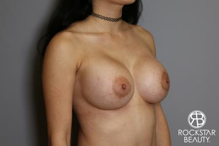 Breast Implant Exchange: Patient 5 - After Image 2