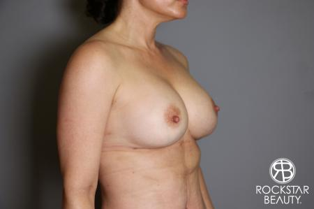 Breast Implant Exchange: Patient 6 - After Image 2