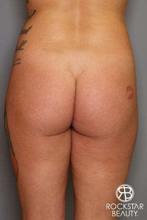 Brazilian Butt Lift: Patient 17 - Before Image 1