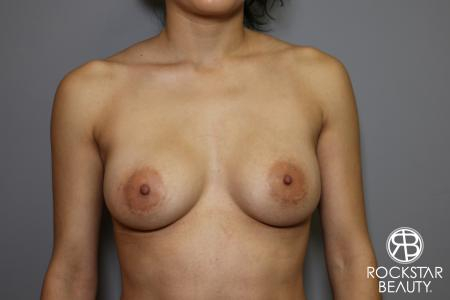 Breast Implant Exchange: Patient 5 - Before Image 1