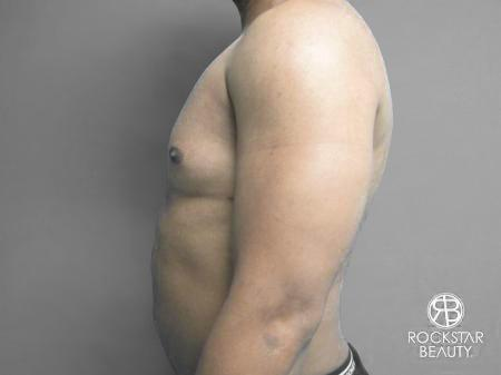 Liposuction: Patient 10 - After Image 5
