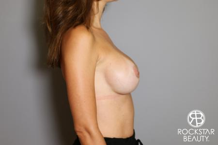 Breast Implant Exchange: Patient 7 - After Image 5