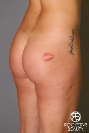 Brazilian Butt Lift: Patient 17 - Before Image 2