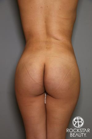 Liposuction: Patient 14 - After Image 2