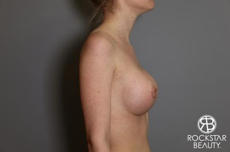 Breast Augmentation: Patient 2 - After Image 3