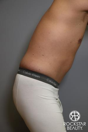 Tummy Tuck: Patient 5 - After Image