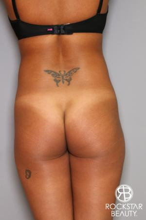 Brazilian Butt Lift: Patient 9 - Before Image 1
