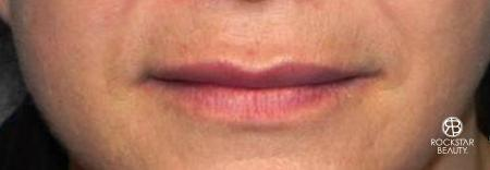 Lip Augmentation: Patient 1 - After Image 1