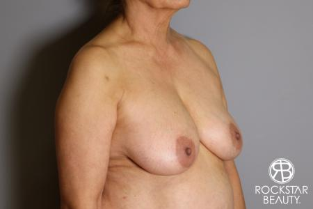 Mastopexy: Patient 3 - Before Image 4