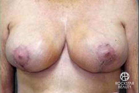 Breast Reduction: Patient 2 - After Image 1