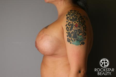 Breast Implant Exchange: Patient 1 - After Image 4
