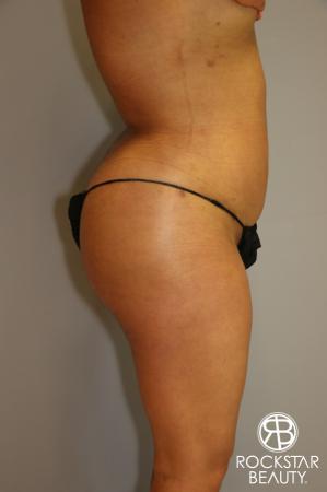 Brazilian Butt Lift: Patient 1 - After Image 3