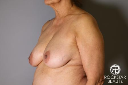 Mastopexy: Patient 3 - Before Image 2