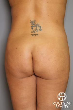 Brazilian Butt Lift: Patient 12 - Before Image 1