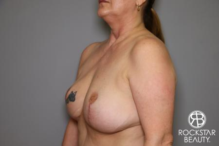 Mastopexy: Patient 2 - After Image 3