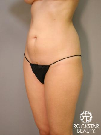 Liposuction: Patient 5 - Before Image 2