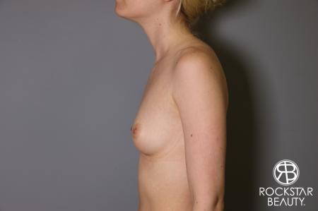 Breast Augmentation: Patient 2 - Before and After Image 5