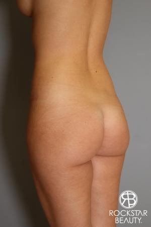 Brazilian Butt Lift: Patient 2 - Before Image 3
