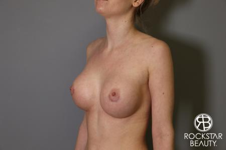 Breast Augmentation: Patient 2 - After Image 4