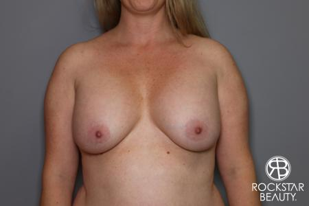 Combo Procedures - Breast: Patient 2 - Before Image