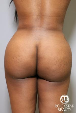 Brazilian Butt Lift: Patient 10 - After Image