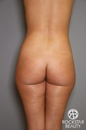 Brazilian Butt Lift: Patient 2 - Before Image 1